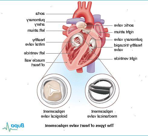 kunstig hjerteklap