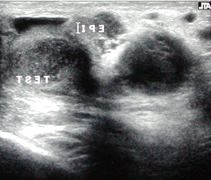 Diagnosticering testikelkræft - Evb2