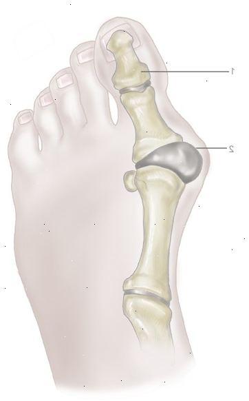 fjernelse af knyst