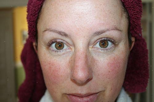 rosacea i øjnene