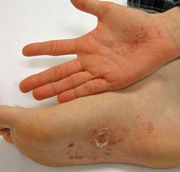 kløe i håndflader og under fødderne
