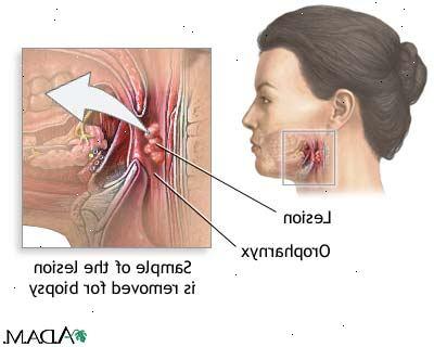 Symptomer på kræft i halsen
