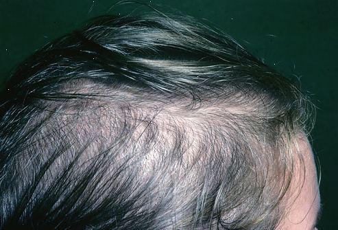 hårtab efter fødsel