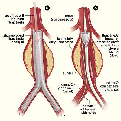 Aortaaneurisme