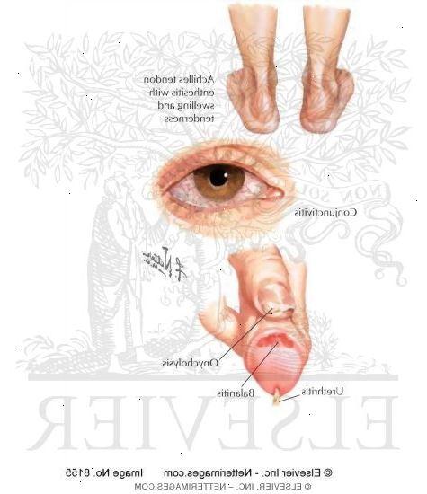 symptomer på klamydia