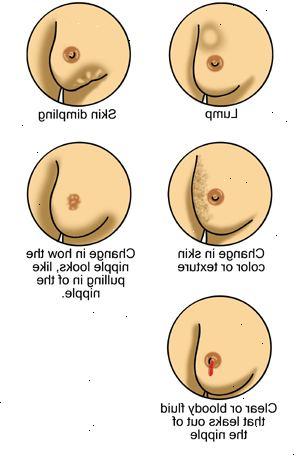 tegn på brystkræft