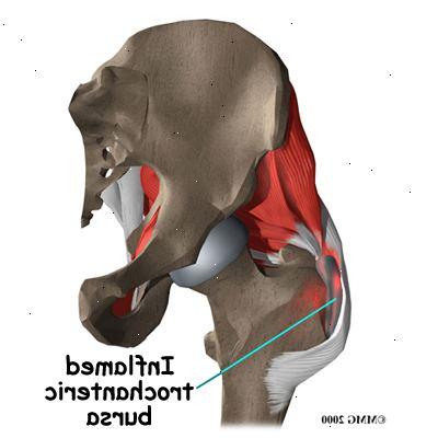 bursitis hofte behandling