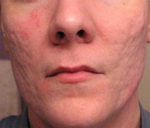 acne medicin recept